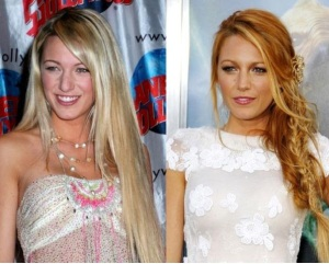 El antes y después de la bella Blake Lively (Foto+nariz y lolas nuevas)