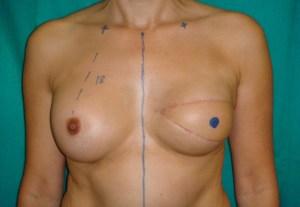 Lo último en cirugía estética: el tatuaje de pezones