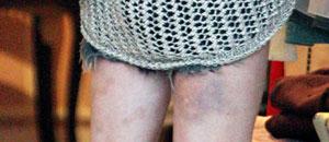 Lindsay Lohan tiene moretones en sus piernas (Fotos)