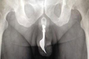 Se metió un tenedor por el pene… ¡Al hospital! (Foto)