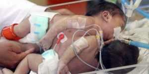 Nacen siamesas unidas por el abdomen y con un mismo hígado en El Salvador