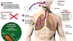 Legionelosis: conoce qué es y por qué causa muertes en EEUU