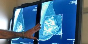 En Venezuela las mujeres con cáncer de mama sobreviven gracias a cambalaches de medicinas