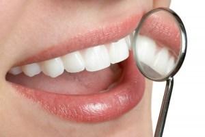 Coge dato: Los remedios caseros más efectivos para blanquear los dientes