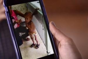 La desnutrición no deja de cobrar vidas en Ciudad Guayana