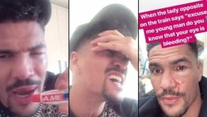 Súper inteligente: Famoso boxeador confundió la crema para sanar su ojo con pasta dental… adivinen el resultado (Foto)