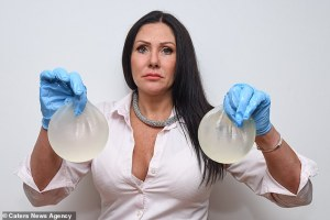 Mujer insegura se hizo las MEGA LOLAS porque su marido le dijo que parecía un macho (FOTOS)