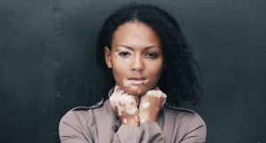 ¡Una solución para el vitiligo! La micropigmentación semipermanete