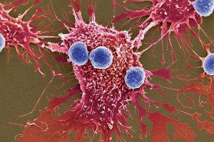 Millones de bacterias programadas para matar, la nueva herramienta contra el cáncer