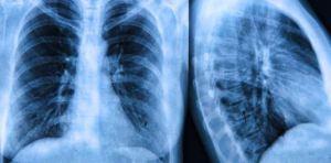 Científicos celebran nuevo tratamiento para la fibrosis quística