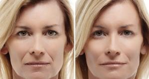 """Síndrome de """"cara triste"""": Cómo deshacerse de las arrugas alrededor de la boca"""