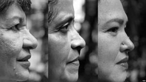 Venezolanas desafían la escasez para sobrevivir al cáncer de mama