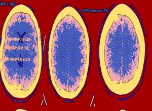 Liderado por médico venezolano: Nuevos estudios en EEUU sobre fisiología cerebral después de un paro cardíaco
