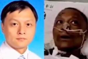 Murió uno de los médicos chinos que despertó con la piel ennegrecida de un coma por Covid-19