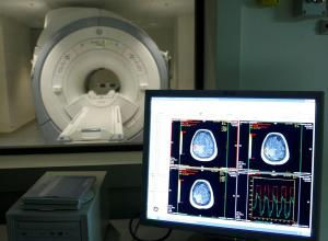 Científicos chilenos proponen un tratamiento contra el alzhéimer con nanopartículas de oro