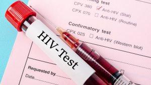 Hombre en Florida contagió a sus amantes de VIH conociendo su estado de salud