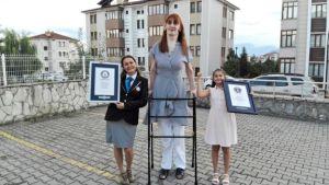 Qué es el síndrome de Weaver, la condición que afecta a la mujer más alta del mundo